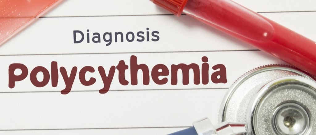 Вторичная полицитемия (вторичный эритроцитоз) – виды, причины, симптомы полицитемии, лечение вторичного эритроцитоза