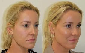 фотография Операция по коррекции уголков глаз