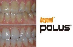 фотография Отбеливание зубов Beyond