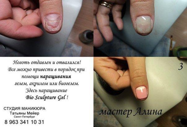 Укрепление ногтей акрил или гель отзывы