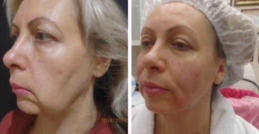 фотография Клиники терапевтической косметологии Аллы Хазовой на улице Куусинена
