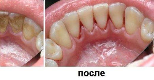 Ультразвуковая чистка зубов цена в нижнем новгороде