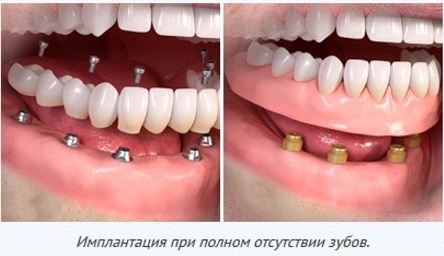 Что такое поставили бабочку на зубы