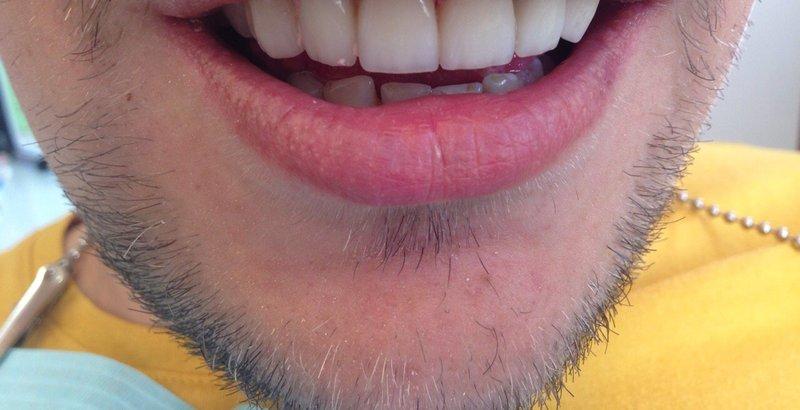 Отзывы о плазменном отбеливании зубов