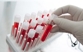 фотография Клинический анализ крови с лейкоцитарной формулой