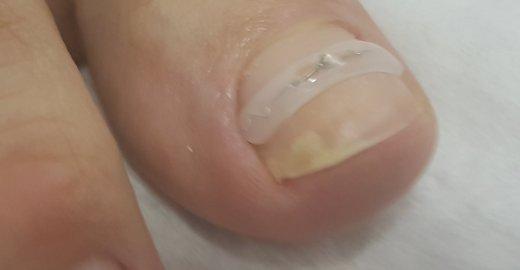 Вросшие ногти санкт петербург