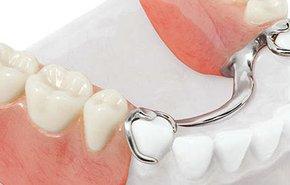 фотография Бюгельные зубные протезы
