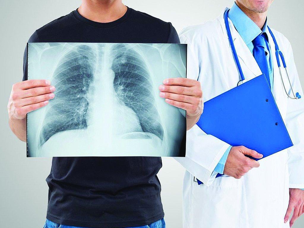 Названы первые симптомы рака лёгких