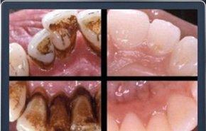 фотография Профессиональная гигиена полости рта