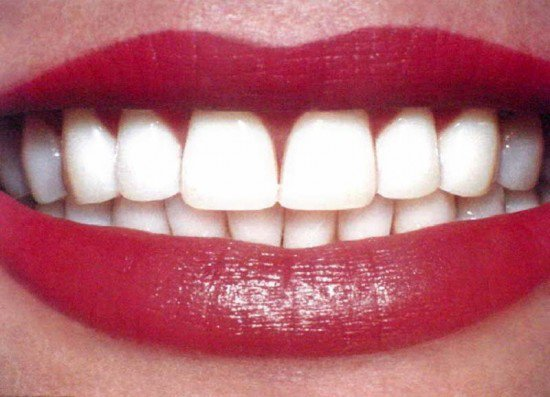 фотография Стоматологической клиники Клуб голливудских улыбок на Лубянке