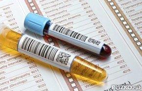 фотография Общий анализ крови