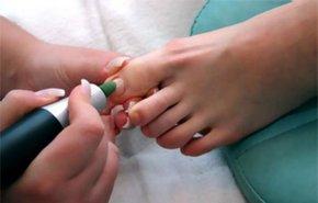 фотография Лечение грибковых заболеваний