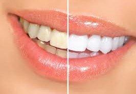 фотография Отбеливание зубов