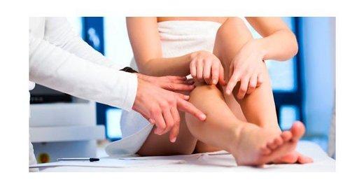 Как быстро избавиться от варикоза на ногах
