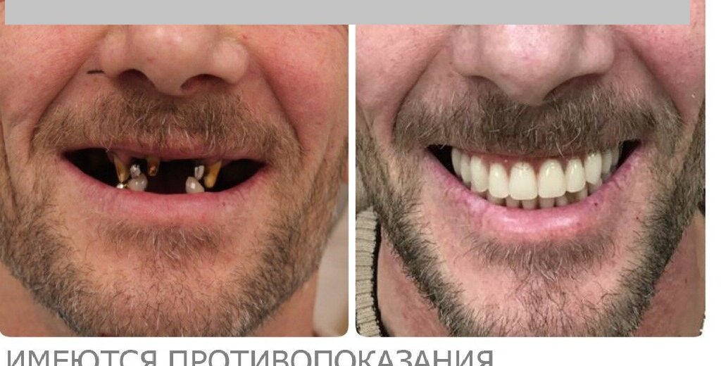 Фотогалерея - Стоматологическая клиника ДЕНТиС в Карасунском округе