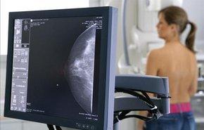 фотография Обзорная маммография